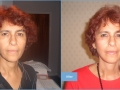 before-and-after-facelift